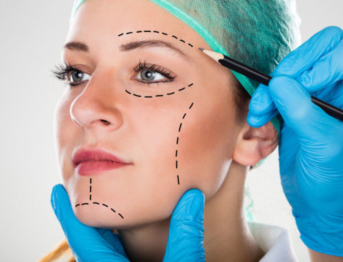 Why is the UpLift Facelift a Good Option For Me?