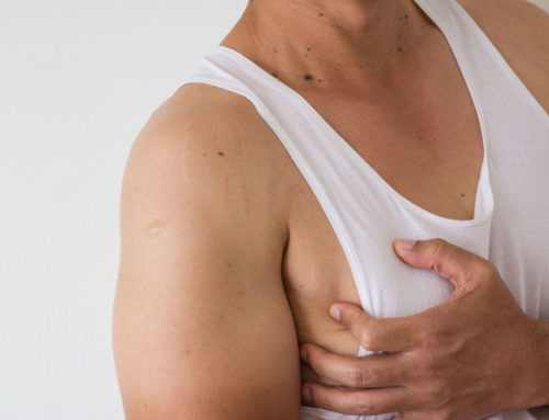 Gynecomastia and The Various Procedures For Male Breast Reduction